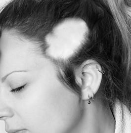 enkei 1 脱毛症ってどれだけあるか知ってる?【成長期毛性脱毛症】【その他の脱毛症】