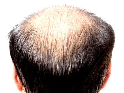 loss 2 脱毛症ってどれだけあるか知ってる?【休止期毛性脱毛症】