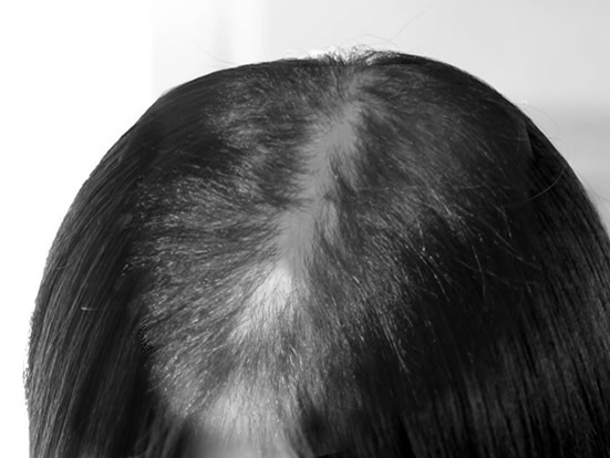 loss 3 1 脱毛症ってどれだけあるか知ってる?【休止期毛性脱毛症】