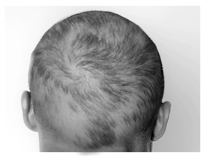 loss 4 1 脱毛症ってどれだけあるか知ってる?【休止期毛性脱毛症】