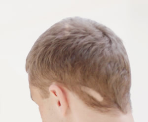 scar 脱毛症ってどれだけあるか知ってる?【成長期毛性脱毛症】【その他の脱毛症】