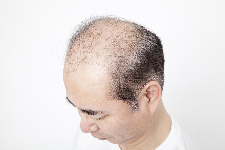 usuge 14 毛を作る遺伝子
