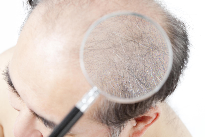 usuge 12 毛を作る遺伝子