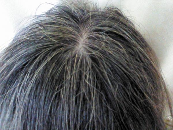 usu 014 03 人種によって髪の色が違うのはなぜ?メラニン色素のお話し【その2】