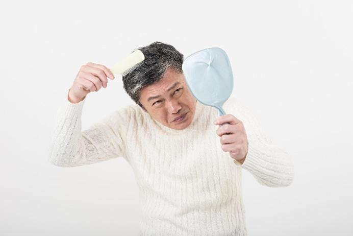 usu 036 01 男性型脱毛症の「症状」「原因」「手当て」