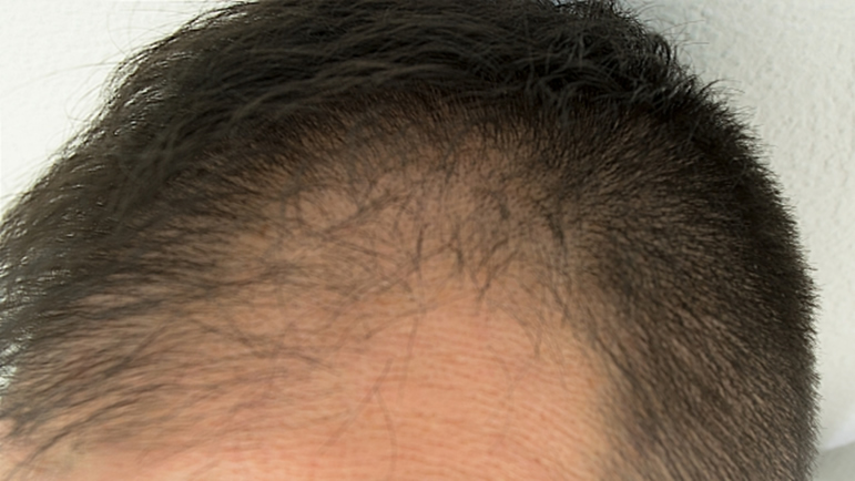 usu 043 01 休止期毛性脱毛症の種類と症状