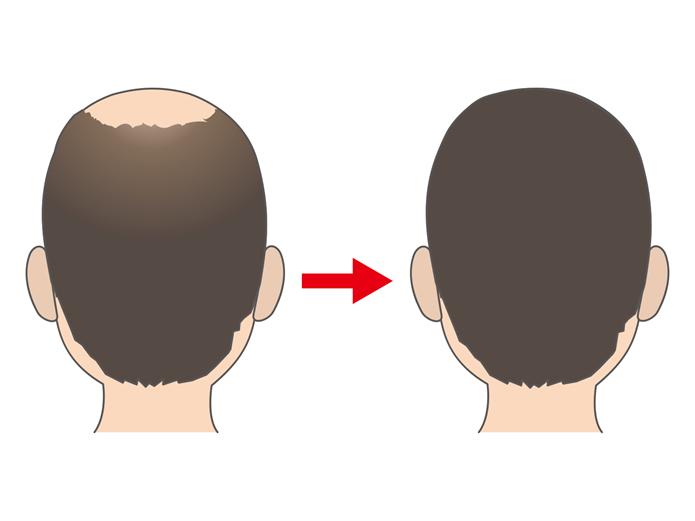 usu 060 02 今すぐ髪を増やしたい!「植毛術」について