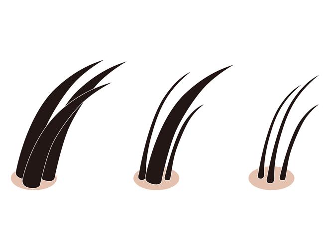 usu 060 03 今すぐ髪を増やしたい!「植毛術」について