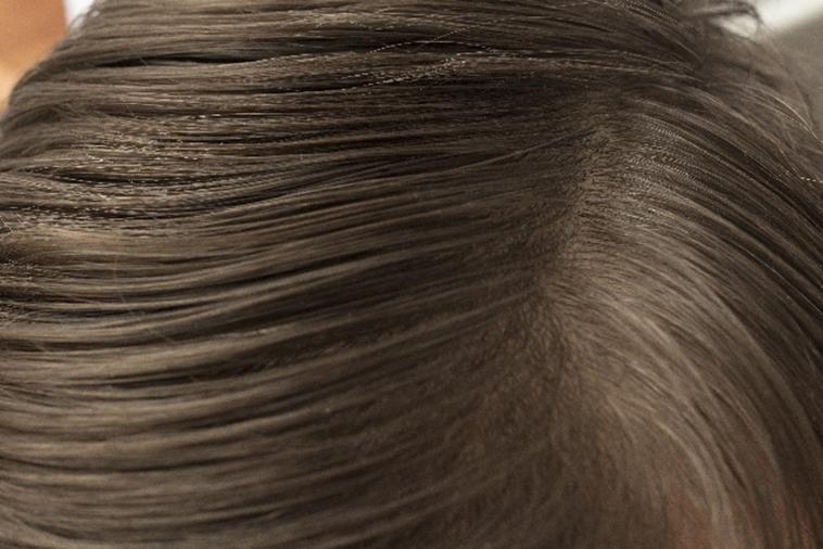 usu 069 01 頭皮の皮脂量は脱毛症と関係があるのか?