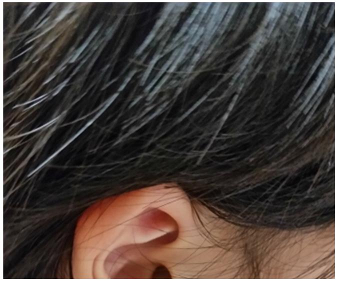 usu 099 02 ヘアダイやブリーチは、髪や頭皮をどれだけ傷つける?