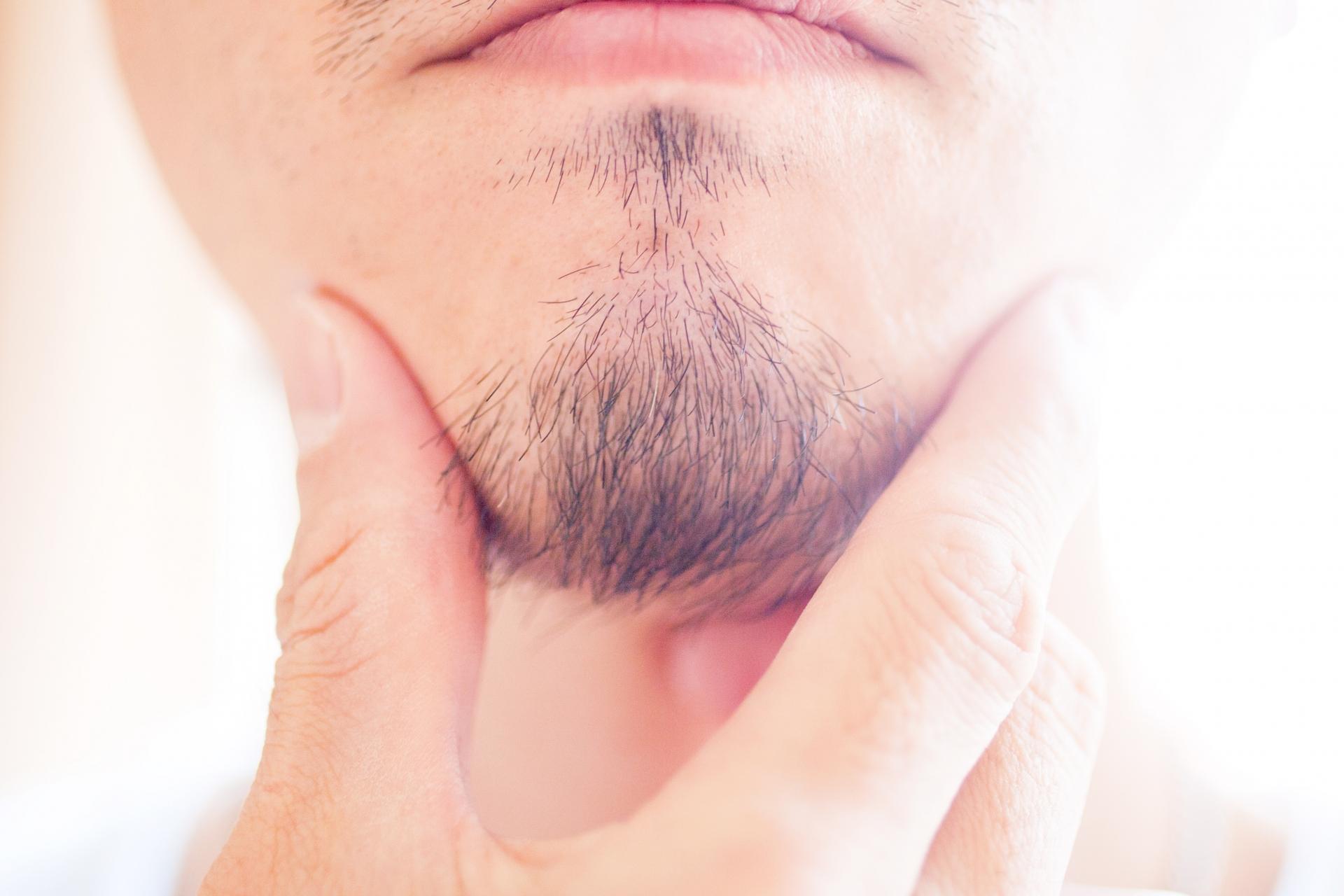 3697742b9eb82262b7fea0b55aa4d9b8 m 男性型脱毛症の初期症状とは?毛周期との関係性
