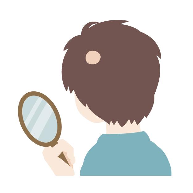 667201 重症の円形脱毛症は、アトピーだと発症しやすいのはホント?