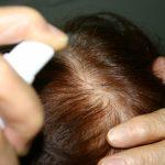 育毛剤・養毛剤は毛生え薬ではない!選び方で効果に差が出る!