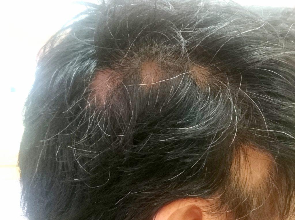 76c99d2f1ddfd3da8c22bf7e269d2708 m 1024x764 円形脱毛症のしくみとは?その種類と原因について