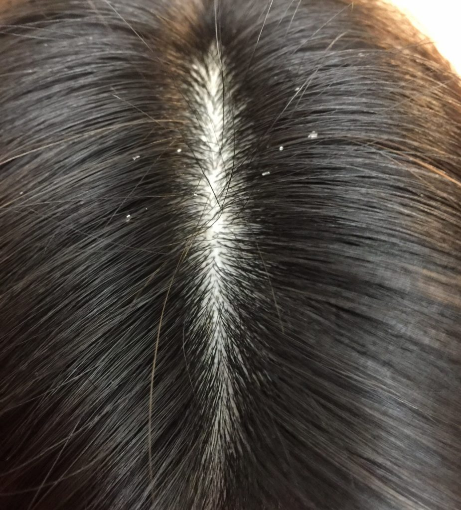 706dcfaddf32b2bb5823b5369e311492 m 925x1024 女性の抜け毛にはどんな種類がある?6つのタイプを知りましょう