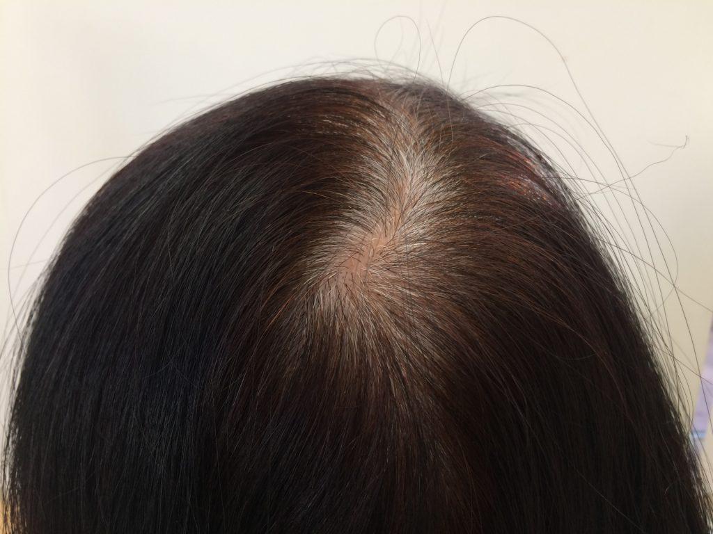 1969aaa536615b26f6678a650651177e m 1024x768 髪をボリュームアップさせる方法は?加齢に伴う分け目の工夫