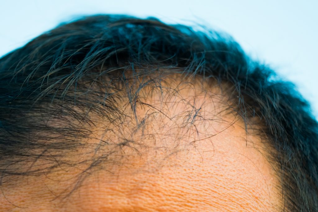 ff892acc974d51f3a20ff171438af24b m 1024x683 植毛や増毛のリスクとは?行う前に知っておきたい髪への影響