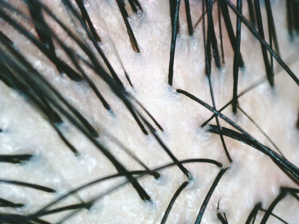 47bbace824eac86b75bb76af7ff8bb15 m 1024x768 毛包を作る組織の役割は?毛の構造を知れば大切なことがわかる
