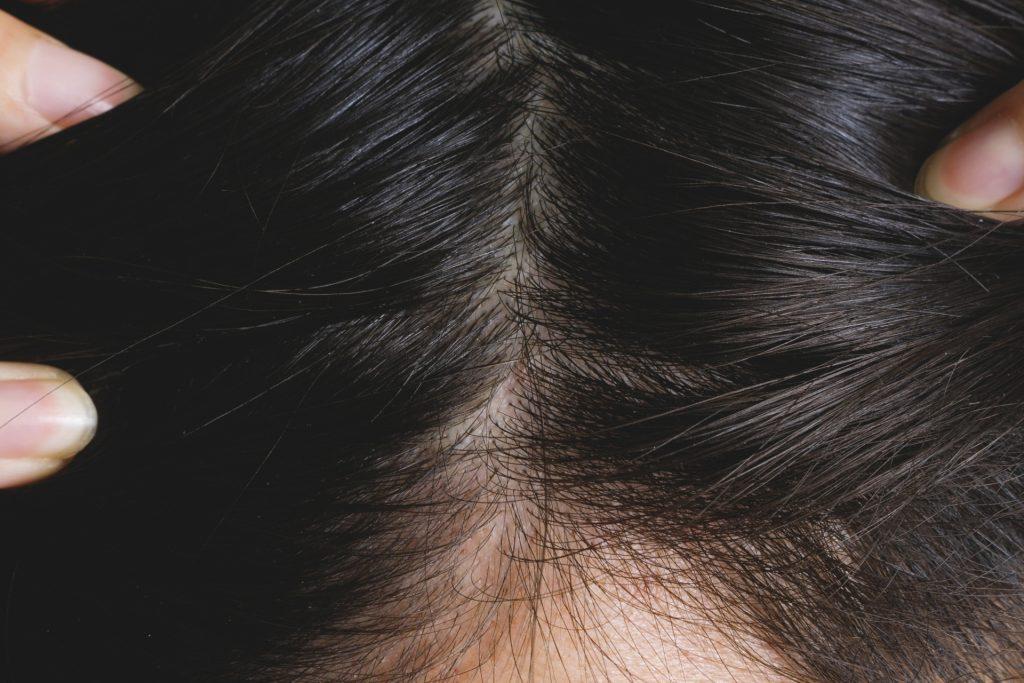 a63491ad0016811dbd61c4ac8e119005 m 1024x683 毛が作られる「毛包」の構造とは?毛が作られるしくみ