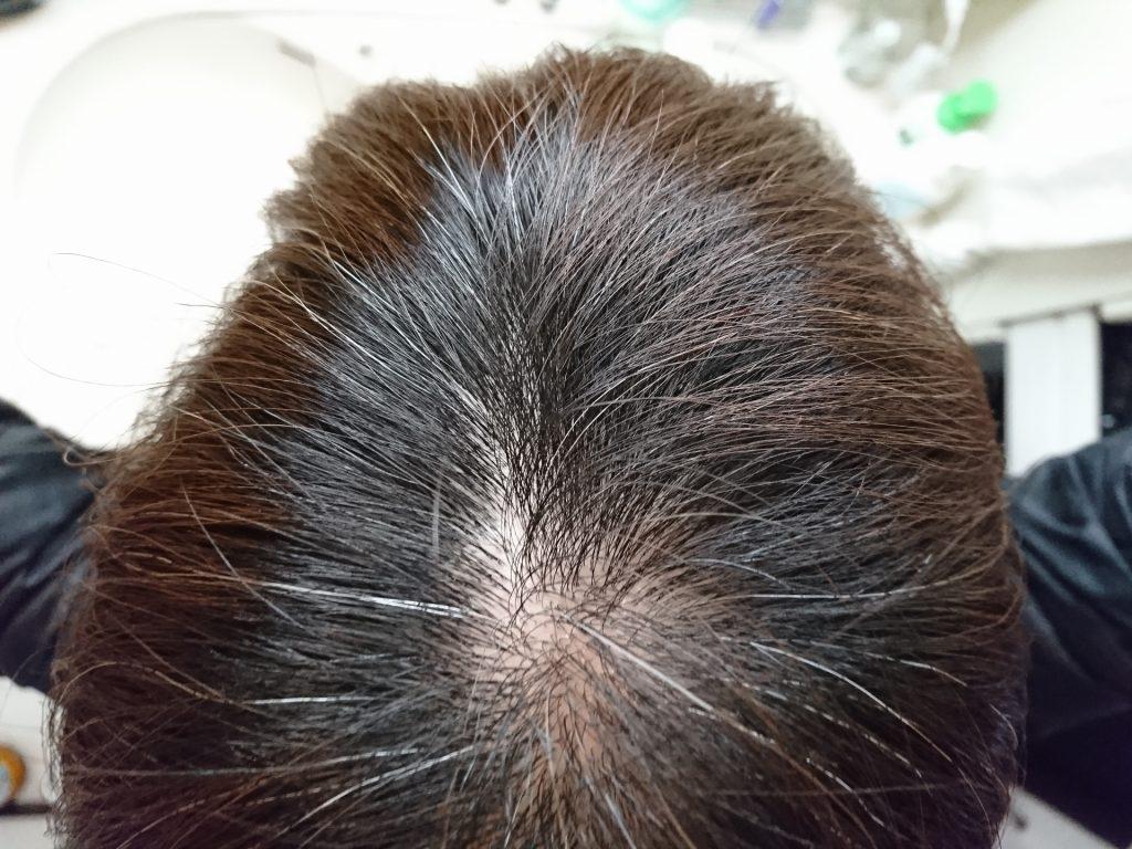 ad95916a1587902df7dd23f74c2ff108 m 1024x768 どこからが男性型脱毛症?診断される基準は何?