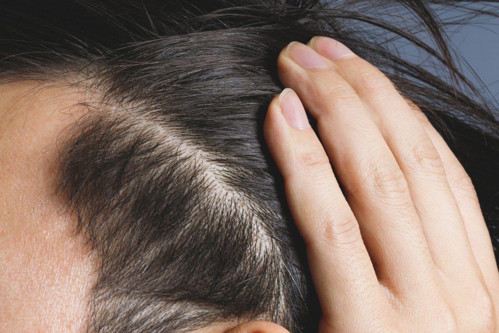 dbbebbee385cf192364a064681e156d3 m 1 1024x683 どこからが男性型脱毛症?診断される基準は何?