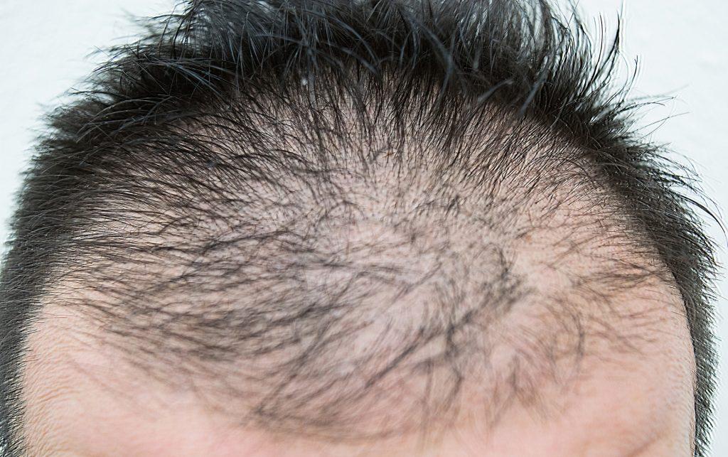 e96b59c30cf3a7329448374dcfa6b003 m 1024x643 成長期が短くなって起こる男性型脱毛症、どんな病気なの?