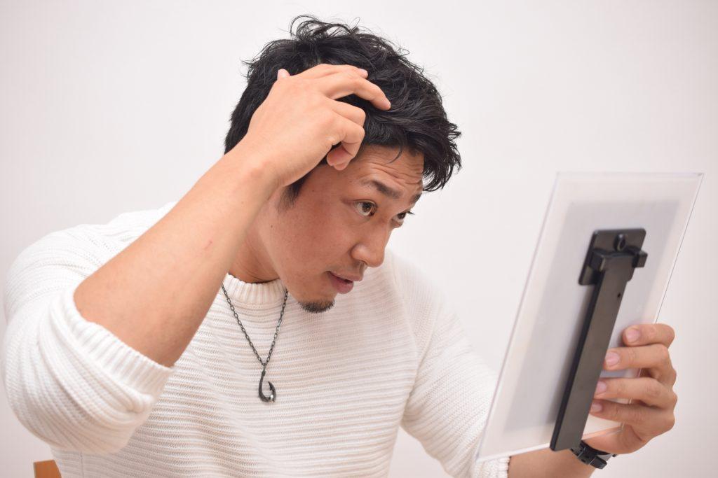 f4fed46528663de8f278fd30f662cb12 m 1024x683 発毛薬フィナステリド誕生で男性型脱毛症はどう変わったか?