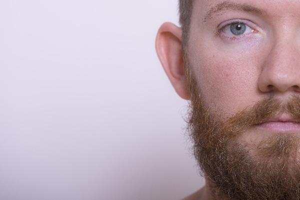 usu 015 03 男性型脱毛と男性ホルモンの関係とは?