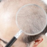 毛を作る遺伝子