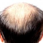 脱毛症ってどれだけあるか知ってる?【休止期毛性脱毛症】