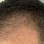 休止期毛性脱毛症の種類と症状