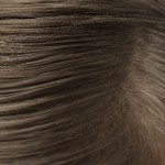 成長期毛性脱毛症の種類と症状