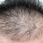 ノーベル賞のiPS細胞は、薄毛治療にどう役立てる?【PART2】