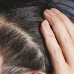 ヘアサイクルがどうなると薄毛になる?しくみと予兆の判断